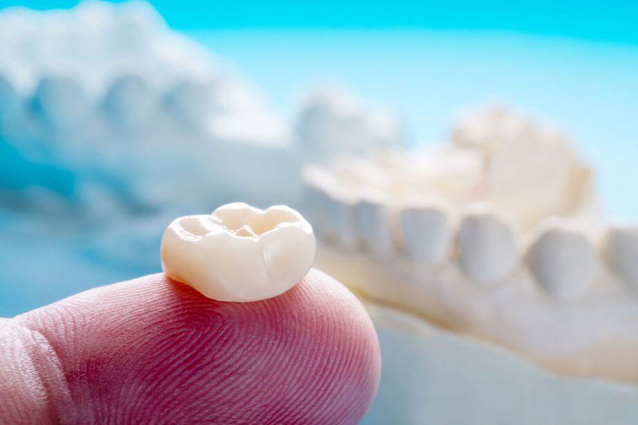 close up of dental crown on man's fingertip