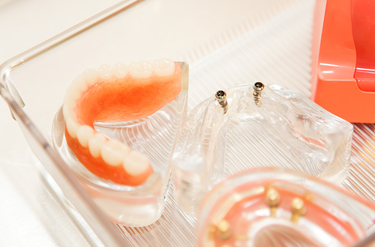 examples of dentures and dental implants in clear tray